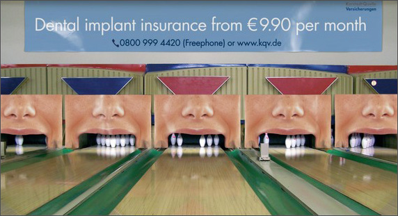 bowling alley pins dental implants