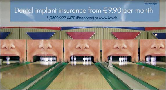 bowling alley pins dental implants